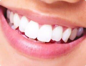 schöne-zähne