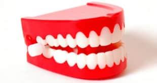 Zähne Bleaching